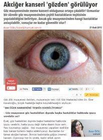 Hürriyet Haber Sitesi – Op. Dr. Özer Kavalcıoğlu – Göz Muayenesi