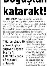 Op. Dr. Serhan Gazyağcı – Sabah – Katarakt