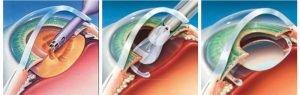 akıllı lens ile katarakt tedavisi