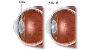 Katarakt sonrası lens değişimi