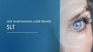 göz tansiyonunda lazer tedavisi