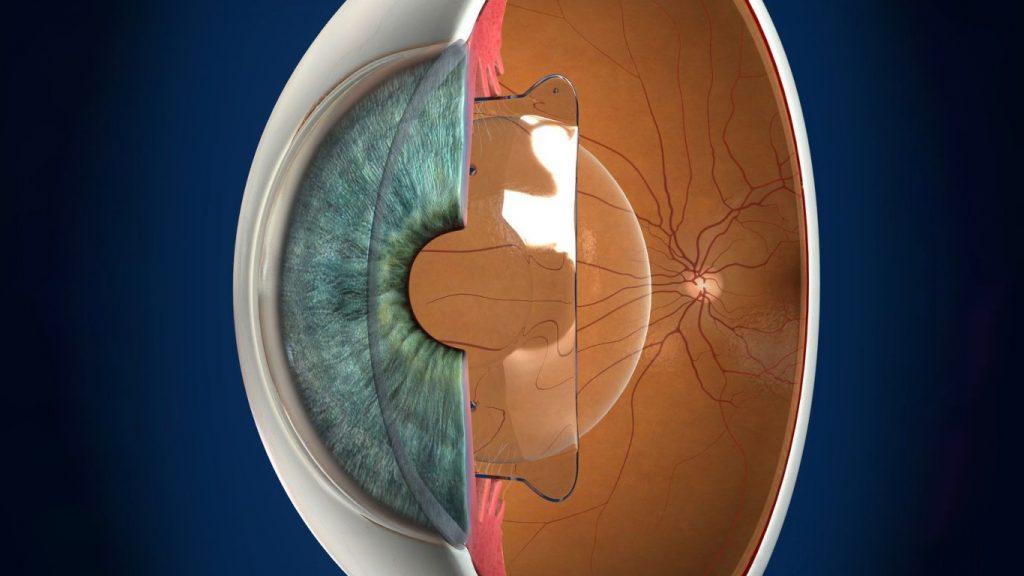 fakik göz içi lens tedavisi