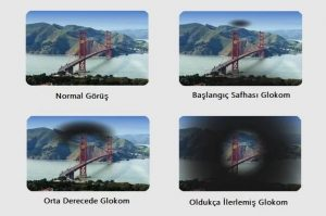 glokom hastalık görüş evreleri