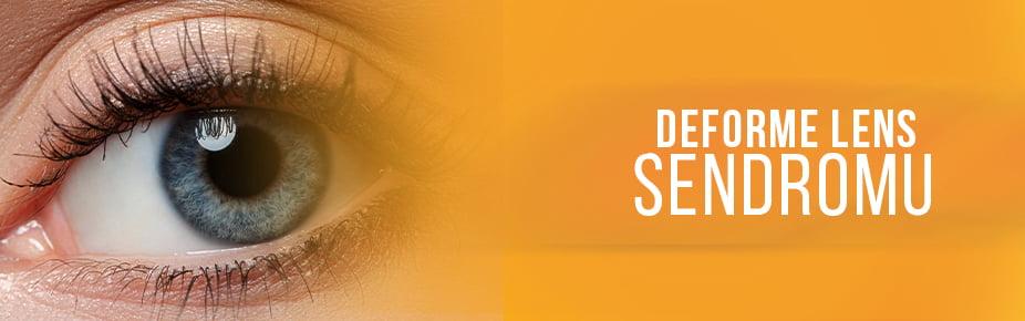 deforme lens sendromu